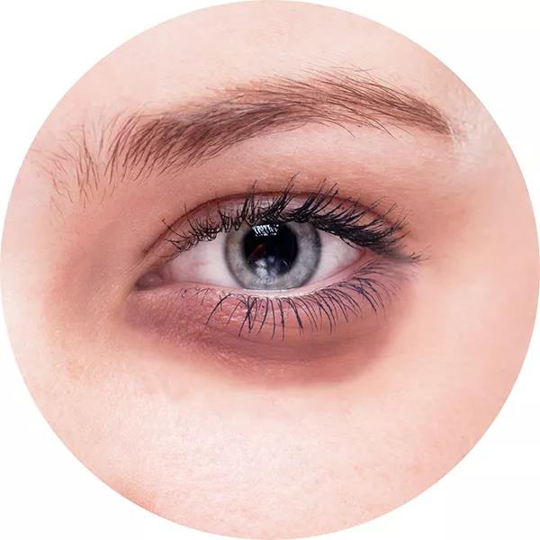 刺梨保护眼睛